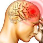 薬を飲まずに偏頭痛やめの奥の痛みを改善する自己流な方法。